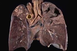 Il tocco di un re, relax in campagna o un cocktail di antibiotici: la dura lotta alla tubercolosi