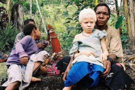 Africa: magia, superstizione e caccia all'albino