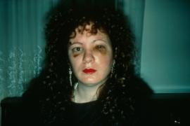 """Nan Goldin: """"Un mese dopo essere stata picchiata"""""""