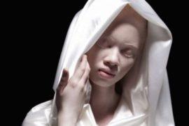 Dossier| La persecuzione degli albini: quando il colore della pelle può decretare il proprio destino